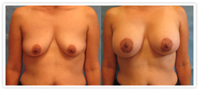 Cosmetic Procedures Tampa - Breast Augmentation Before & After