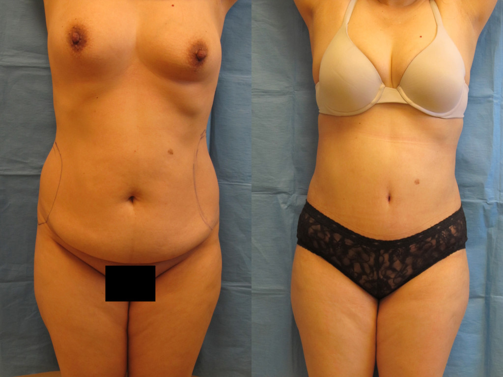 Before and After Tummy Tuck Patient-2 Photos